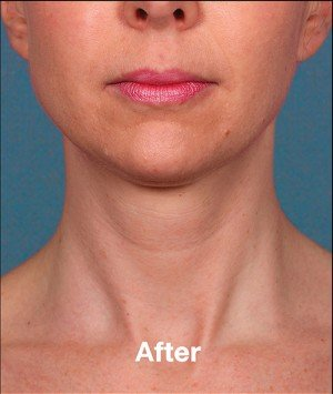 botox beverly hills after